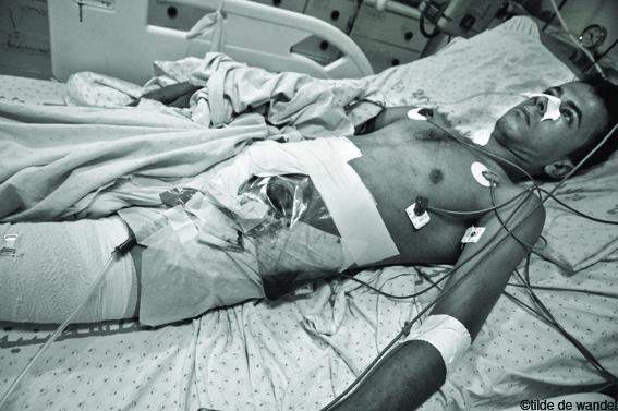 Sindromi di reparto di petto di una spina dorsale